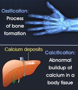 Proses pertumbuhan dan perkembangan tulang (osifikasi) 1
