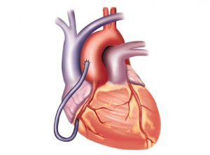 Pengertian Sistem Peredaran Darah kecil dan besar