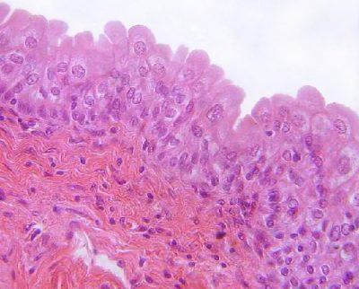 sel bulat di permukaan apikal
